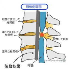 後縦靱帯の病態