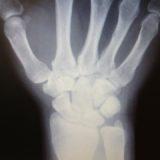 舟状骨骨折後遺症 / 手の付け根の痛み