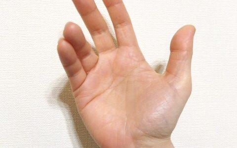 ギヨン管症候群 / 手のしびれ