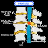 後縦靱帯骨化症 (OPLL ) / 首の痛み・手足のしびれ