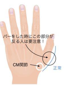 CM関節症イメージ