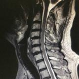 頚椎症性脊髄症 / 手指のしびれ・歩行障害