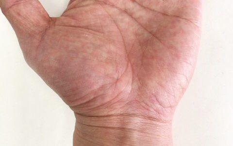 手根管症候群 / 手と指のしびれ