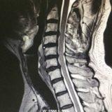 頚椎椎間板ヘルニア / 首の痛み・手や指のしびれ