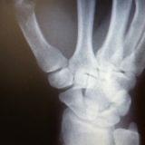 CM関節症  / 親指付け根の痛み