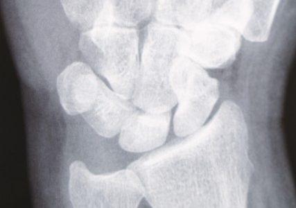 TFCC損傷 (三角線維軟骨複合体損傷) / 手首の小指側の痛み