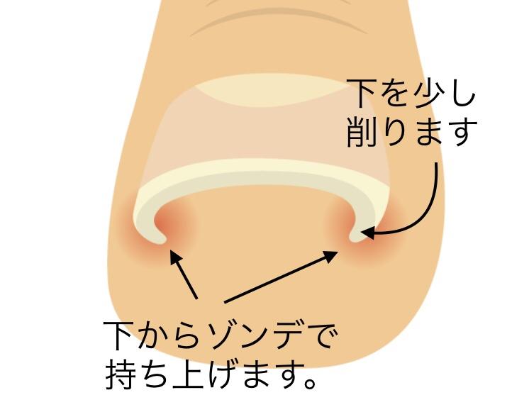 巻き爪治し方イメージ