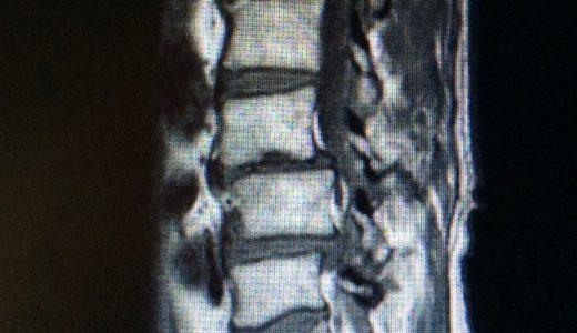 腰椎分離すべり症 / 腰の痛み・足のしびれ