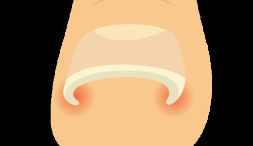 巻き爪の原因と治療。爪の切り方の見直しを。