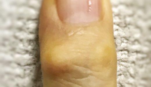 へバーデン結節(ヘベルデン結節) / 指の第1関節の腫れ