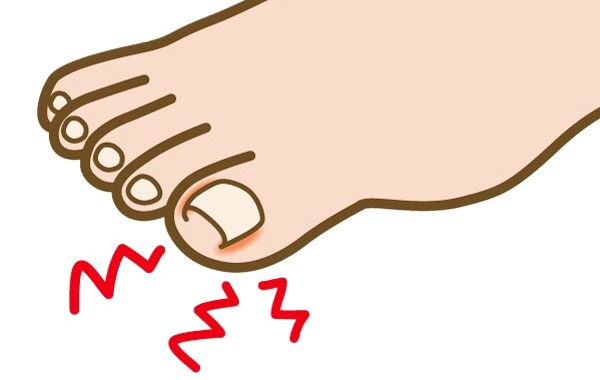 巻き爪イメージ