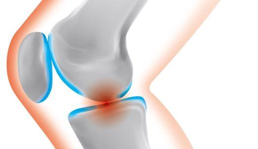変形性膝関節症 / 膝(ひざ)の痛み