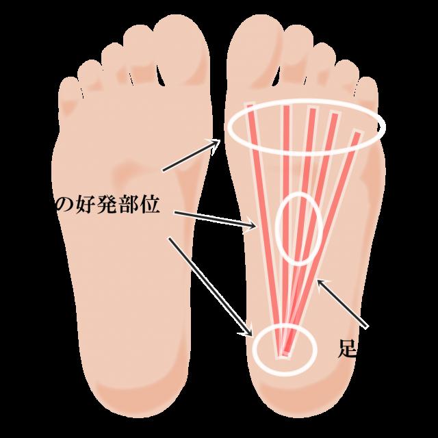 足底腱膜炎好発部位