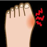 外反母趾 (がいはんぼし) とは?原因と治療法