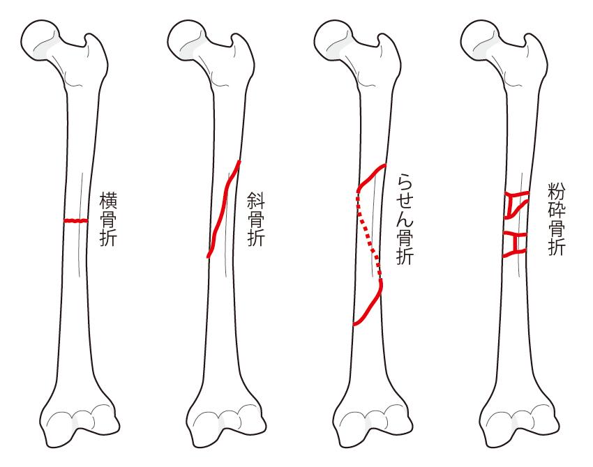 骨折の種類