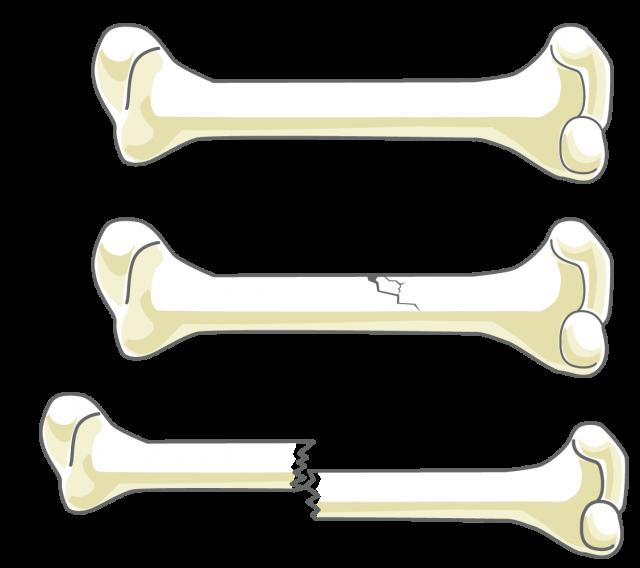 骨の折れ方