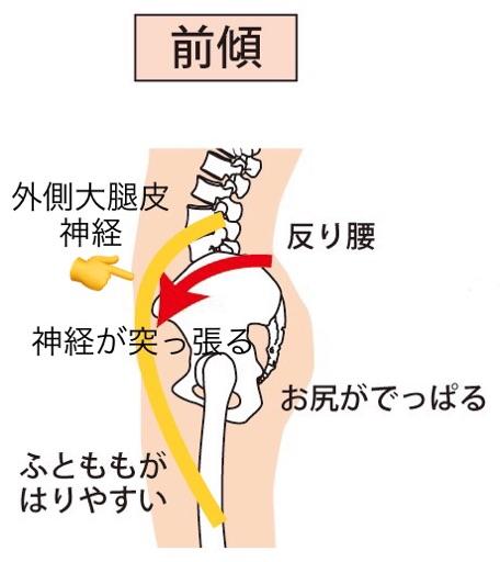 骨盤前傾による外側大腿皮神経痛