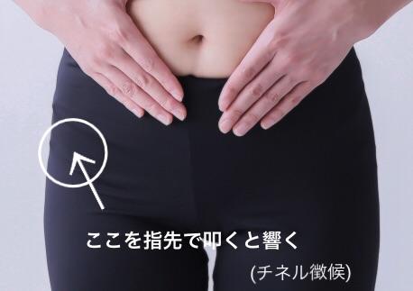 外側大腿皮神経(チネル徴候)