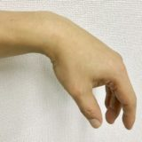 手首が動かない下垂手の原因と治療法