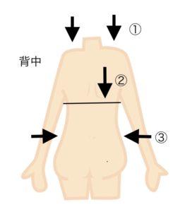 側弯症立位テスト