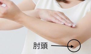 肘頭骨折イメージ
