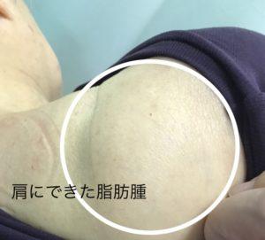 肩にできた脂肪腫