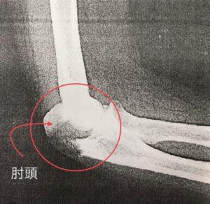 肘頭骨折レントゲン