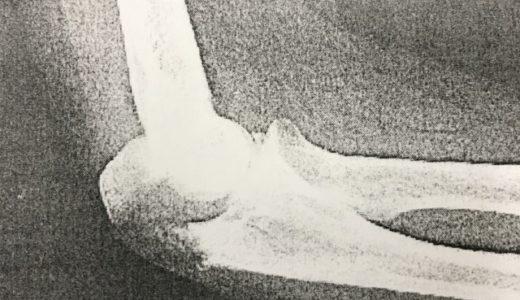 肘頭骨折の治療とリハビリの重要性