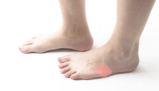 足の外側が痛い短腓骨筋腱付着部炎とは?