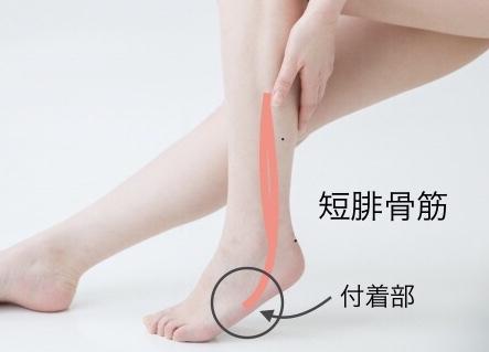 短腓骨筋腱付着部
