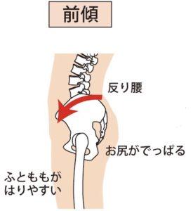 反り腰、骨盤前傾
